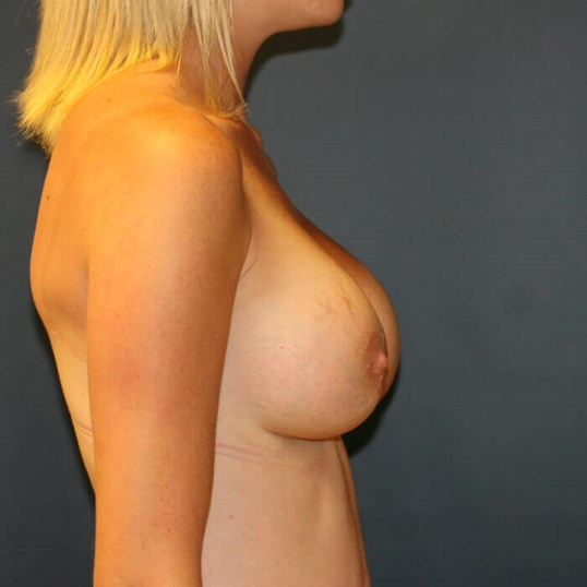 Breast Augmentation Side View After breast augmentation