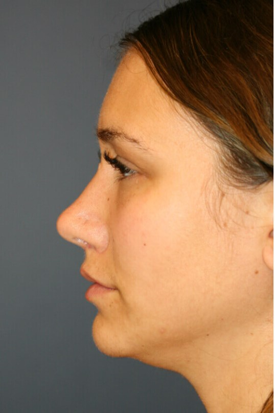 Rhinoplasty Left Profile View After