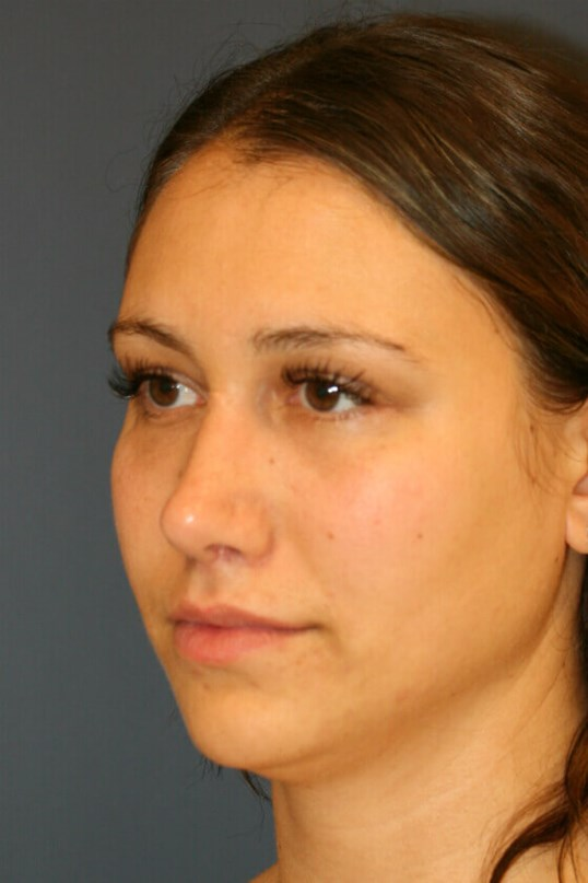 Rhinoplasty Left Oblique After
