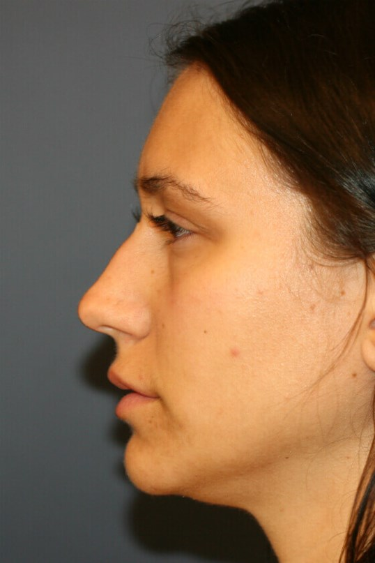 Rhinoplasty Left Profile View Before