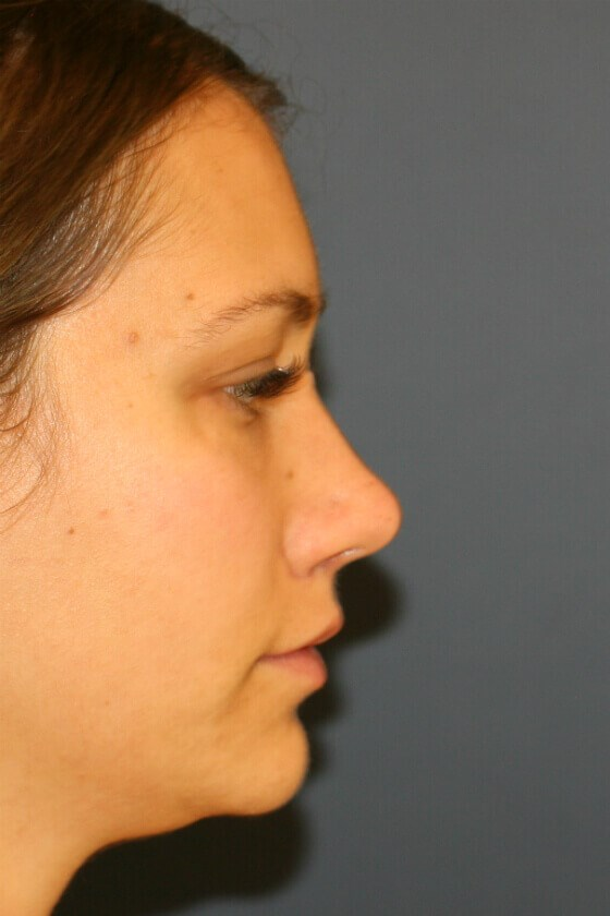 Rhinoplasty Right Profile View After