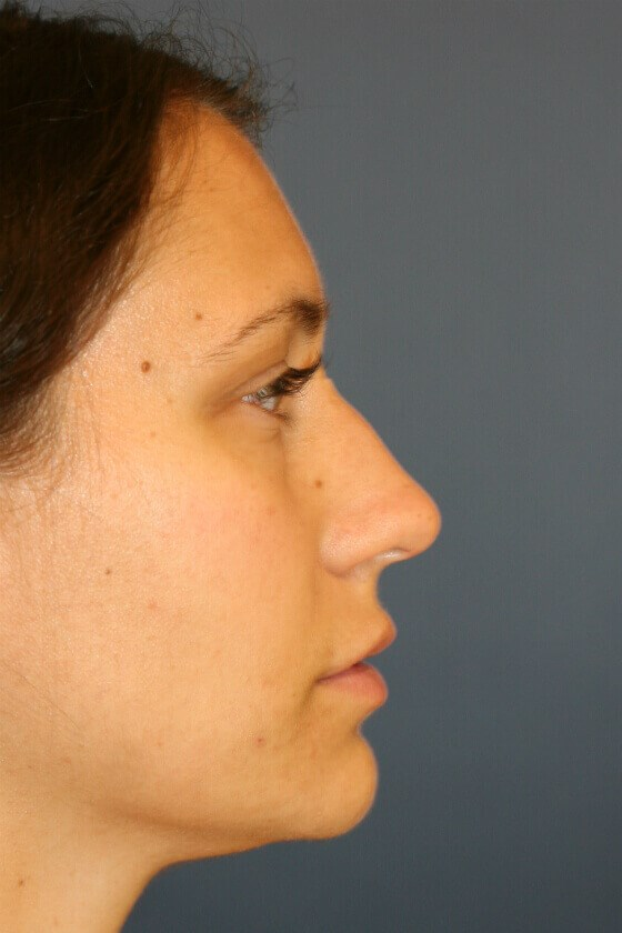 Rhinoplasty Right Profile View Before