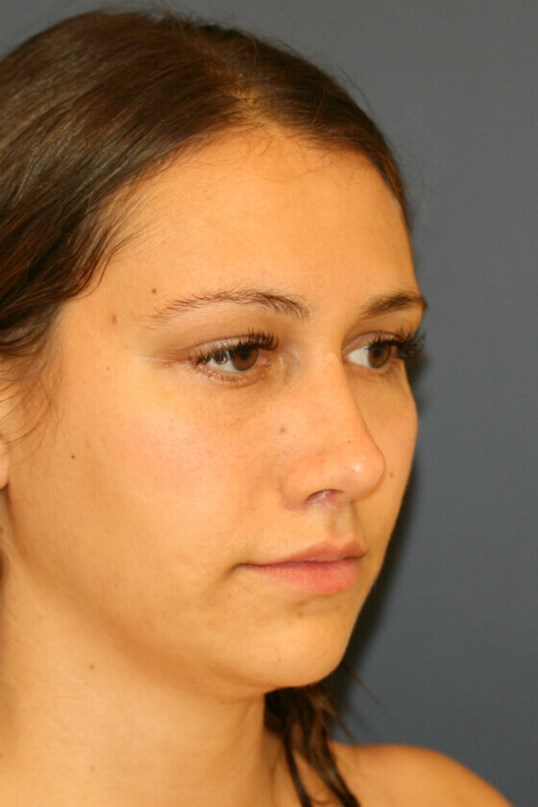 Rhinoplasty Right Oblique After
