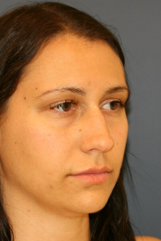 Rhinoplasty Right Oblique Before