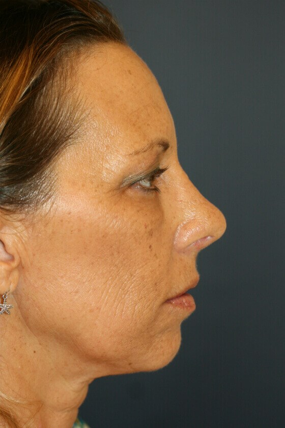 Rhinoplasty (nose re-shaping) After Rhinoplasty