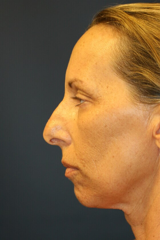 Rhinoplasty (nose re-shaping) Before Rhinoplasty