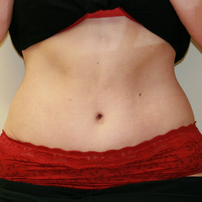 Tummy Tuck front view After Tummy Tuck