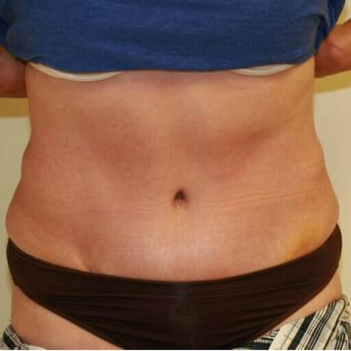 Fitness Tummy Tuck 9 Front After