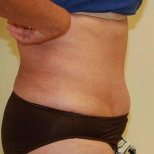 Fitness Tummy Tuck 9 Side After