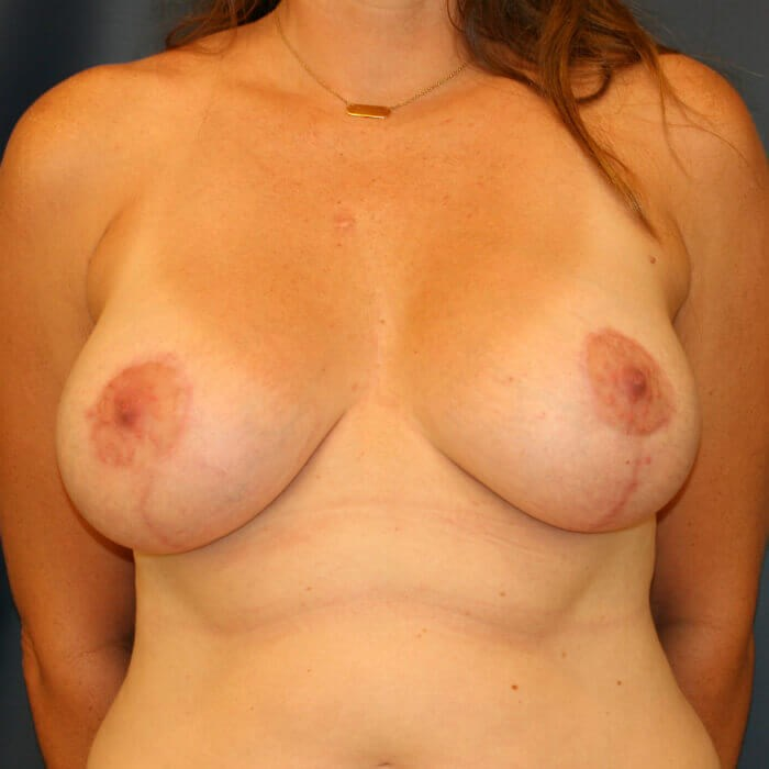 Breast Aug/Lift Front View After