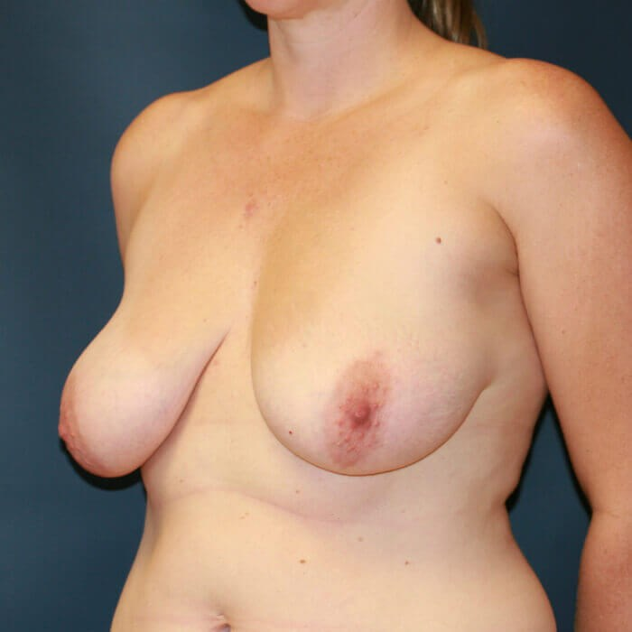 Breast Aug/Lift Oblique View Before
