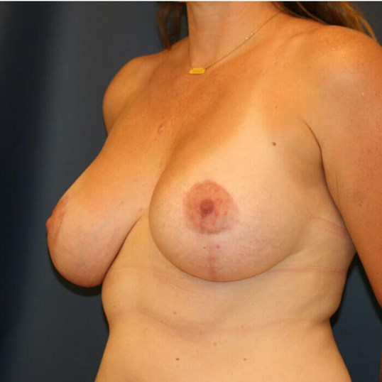 Breast Aug/Lift Oblique View After