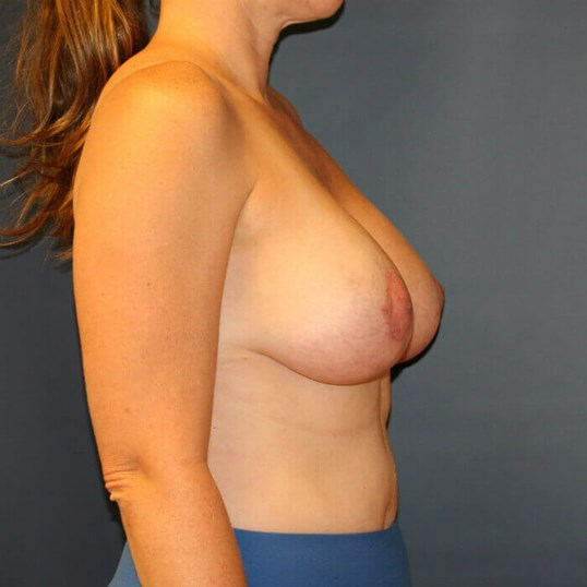 Breast Aug/Lift Side View After