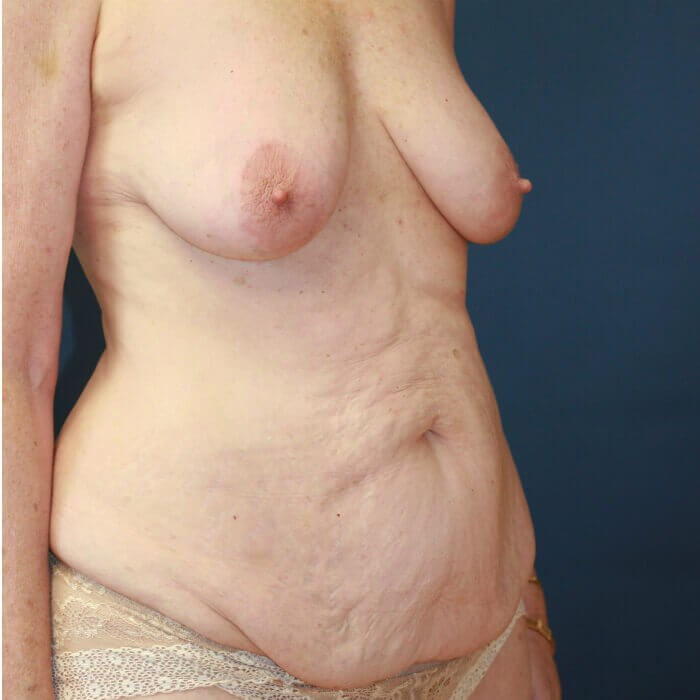 Mommy Makeover Oblique View Before
